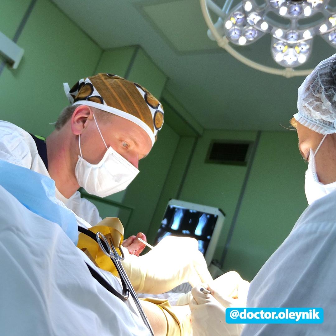 Операция по удалению косточек на ногах (шишек больших пальцев)